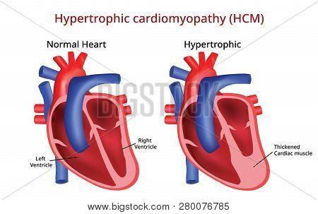 Hypertrophic Cardiomyopathy, Heart Disease Vector Image File
