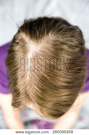 Hair Loss Female. Alopecia Areata. Close Up View