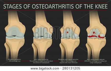Stages Of Osteoarthritis Of The Knee. Editable Vector Illustration In Realistic Style Isolated On A