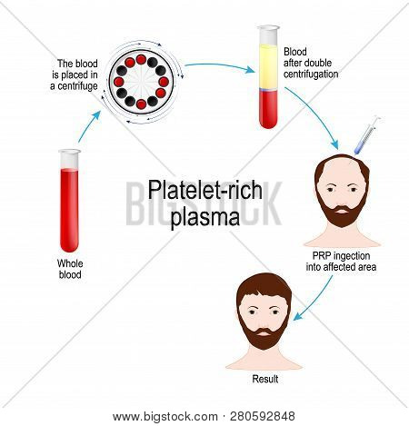 Platelet-rich plasma. PRP Hair Therapy. Medical procedure. Process by which a hair restoration surgeon takes a patient's blood, removes the erytrocytes and plasma, then injects PRP just under the scalp where hair growth is desired. poster