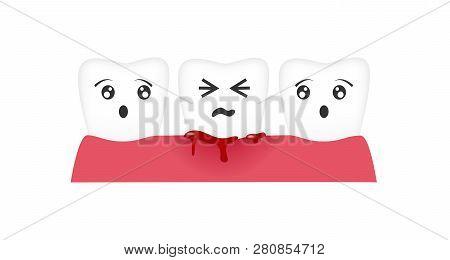 Gingivitis Tooth / Blood Bleeding Vector On White