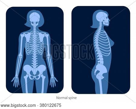 Normal Spine Xray Flat Vector Illustration In Woman Body. Backbone, Joint, Skeleton Anatomy In Femal