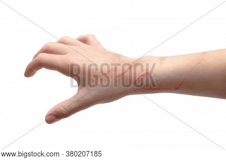 Childs Hand Backside Scratched By Cat On The Wrist. Isolated On White Background.