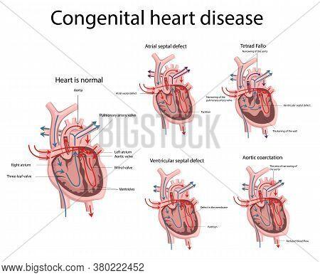 Vector Illustration Of Congenital Heart Disease. Heart Disease