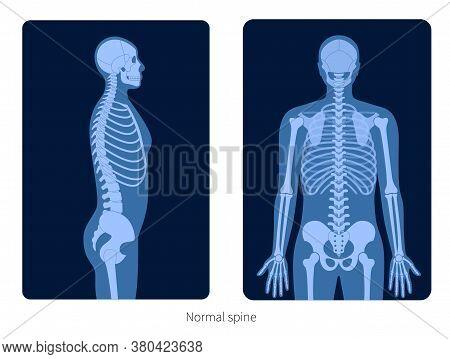 Normal Spine Xray Flat Vector Illustration In Human Body. Backbone, Joint, Skeleton Anatomy In Male