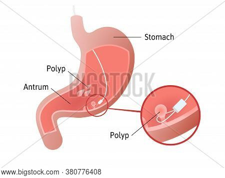 Removal Of Gastric Polyps, Masses Of Cells Inside Stomach. Pedunculated And Flat-based Polyp. Antrum