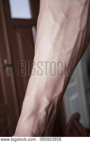 Forearm Of The Guy Of 18 Years With Very Convex Veins, Inside