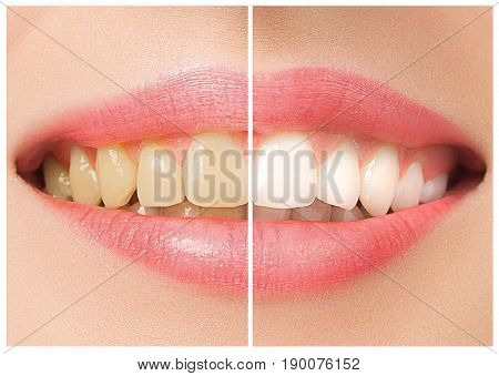 The female teeth before and after whitening. Collage