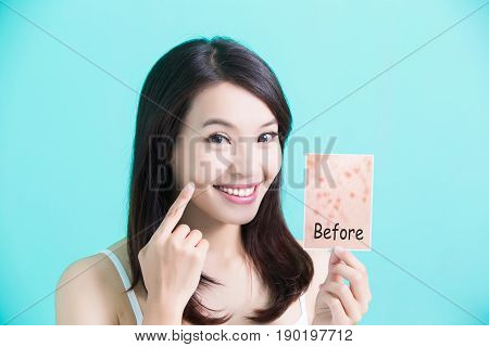 beauty skincare woman take picture and point her face before and after