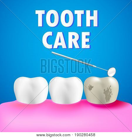 Mouth with healthy teeth and decay tooth with abscess on gum. Dentist mirror. Tooth care concept. Vector illustration