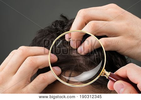Close-up Of Dermatologist Checking Patient's Hair Through Magnifying Glass