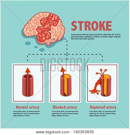 stroke disease ischemic and hemorrhagic blocked and ruptured artery illustration vector