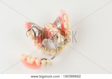 Clasp prosthesis with lock fixation on a white background