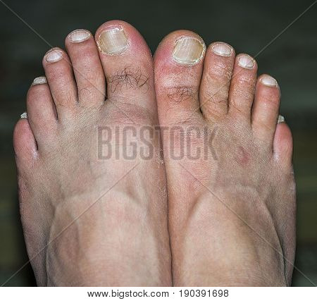 Human foot, fungus diseased human foot pictures, foot health and feet
