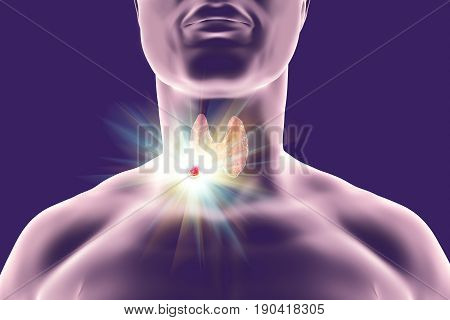 Destruction of thyroid tumor, 3D illustration. Conceptual image for thyroid cancer treatment