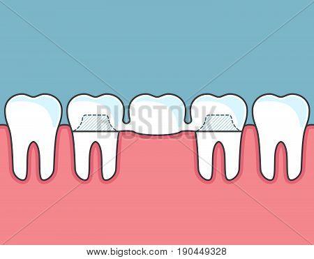 Dental bridge and row of teeth and gum