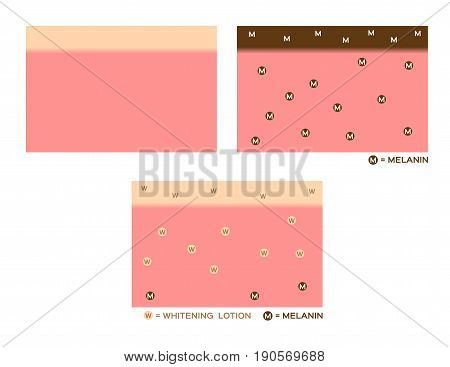 skin color , melanin and whitening lotion vector