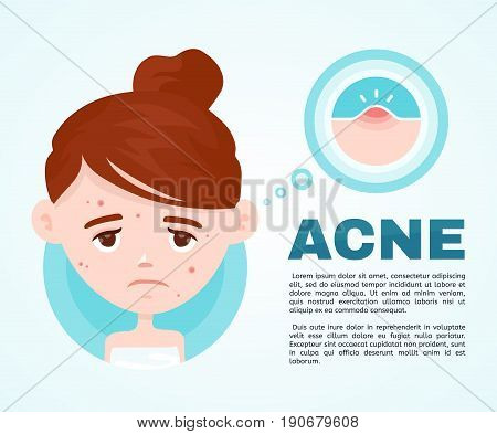 Acne infographic. Vector modern flat style cartoon character illustration. Isolated on blue background. Unhappy teen girl struggling with acnepimples. Skin face problem concept