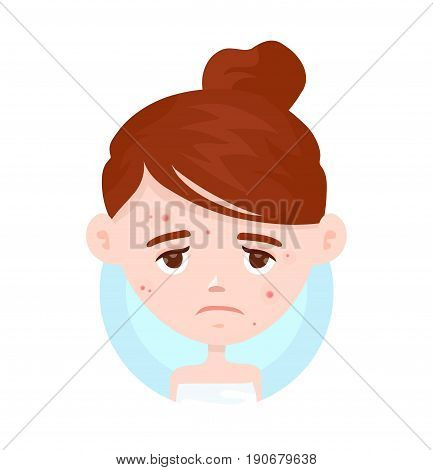 Unhappy teen girl struggling with acnepimples. Skin face problem concept. Vector modern flat style cartoon character illustration. Isolated on white background.