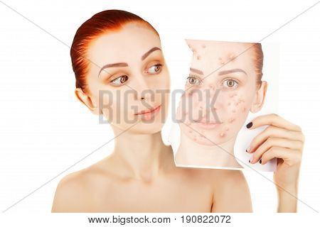 red haired woman fights with pimples on white