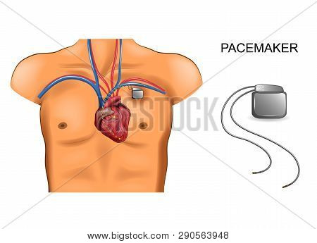 Vector Illustration Of Heart And Pacemaker. Cardiology