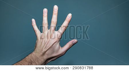 Left Hand With Broken Finger And Ganglion Cyst