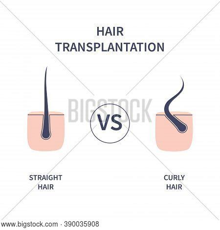 Hair Transplantation For Curly Versus Straight Hair