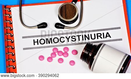 Homocystinuria Is A Hereditary Metabolic Defect. Text Label For A Medical Diagnosis. Diagnosis By A