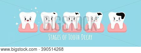 Stages Of Tooth Decay In Gum Icon Set. Cute Kawaii Teeth On Different Stages Of Dental Caries Develo