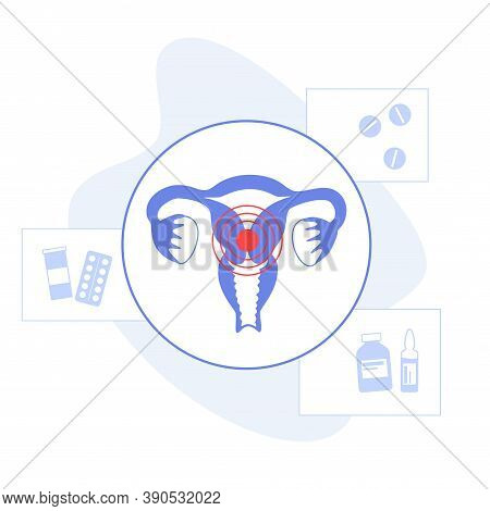 Pain Or Inflammation In Uterus. Women Health Clinic Concept. Female Reproductive System And Internal