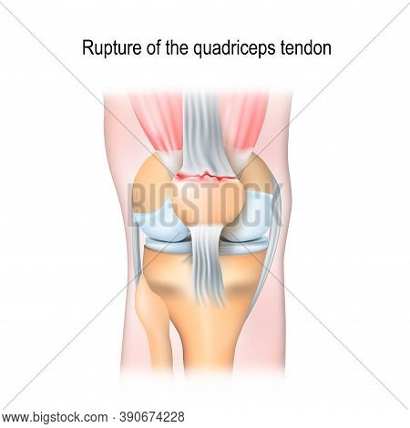 Rupture Of The Quadriceps Tendon. Knee Joint With Patella And Tendon Tears.