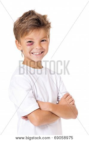 Portrait of boy with bruise, isolated on white background poster