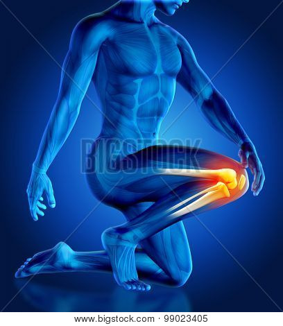 3D render of a male figure holding his knee in pain with partial skeleton
