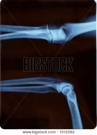 Elbow Radiography