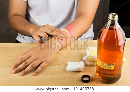 Apple Cider Vinegar Effective Natural Remedy For Skin Itch, Fungal Infection, Warts, Bruises And Bur