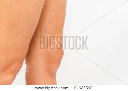 Varicose veins on a leg white background. poster