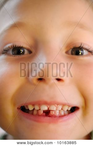Closeup of Young Boy with a Lost Tooth