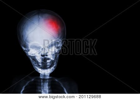 Stroke . Film X-ray Skull And Body Of Child With Red Color At Head . Neurological Concept