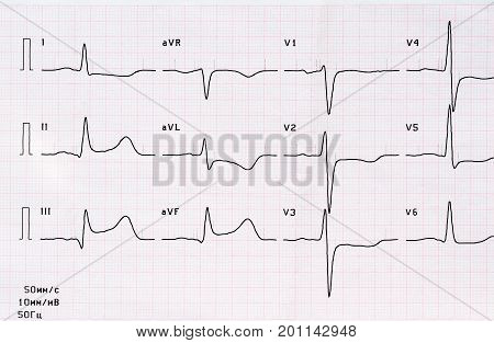 Emergency cardiology. ECG with acute period of large-focal posterior diaphragmatic myocardial infarction