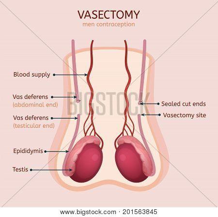 Man vasectomy image. Contraception concept. Male reproductive organs with useful information. Testis, scrotum and vessels. Vector illustration in light pink and red colours.