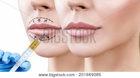Beautiful lips of adult woman. Before and after lips filler injections. Fillers concept. poster