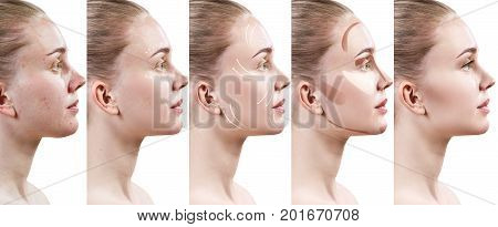 Beautiful young woman step by step improves her skin condition. Skin care concept.