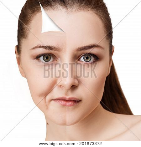 Woman's face before and after rejuvenation or plastic surgery. Anti-aging concept.