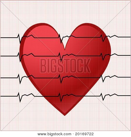 ekg with smaller square chart behind vector