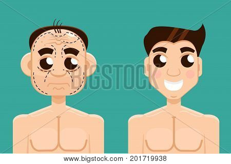 Plastic surgery man before and after. Vector illustration
