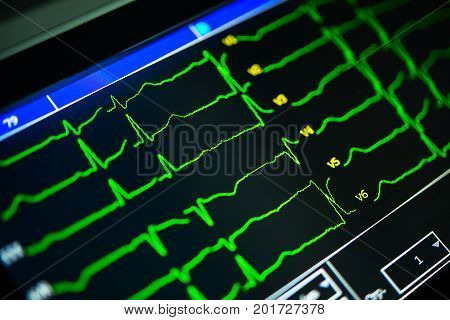 cardiogram close-up on a cardiograph monitor in the hospital