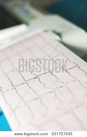 cardiogram close-up cardiograph monitor in doctors hands