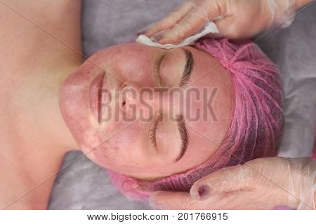 Hands of cosmetician, female face. Girl with problematic skin.
