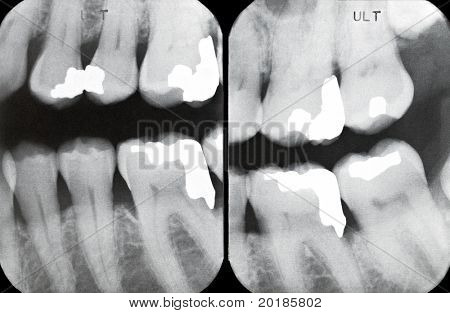 Right Periodontal X-rays