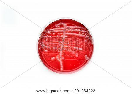 Colonies of bacteria in culture medium plate